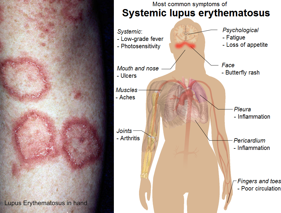 Free essay on systemic lupus